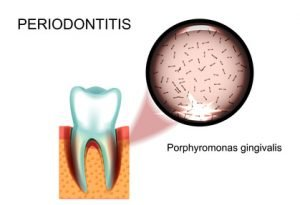 Parodontologie Krefeld - Ratgeber für Patienten